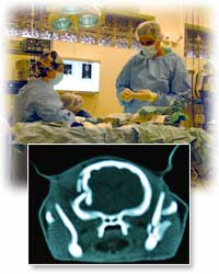 Neurology Emergency Surgery
